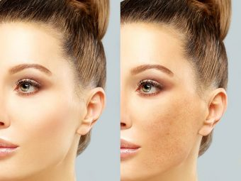 How To Prevent Pigmentation During Pregnancy