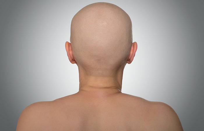 causes of alopecia in females
