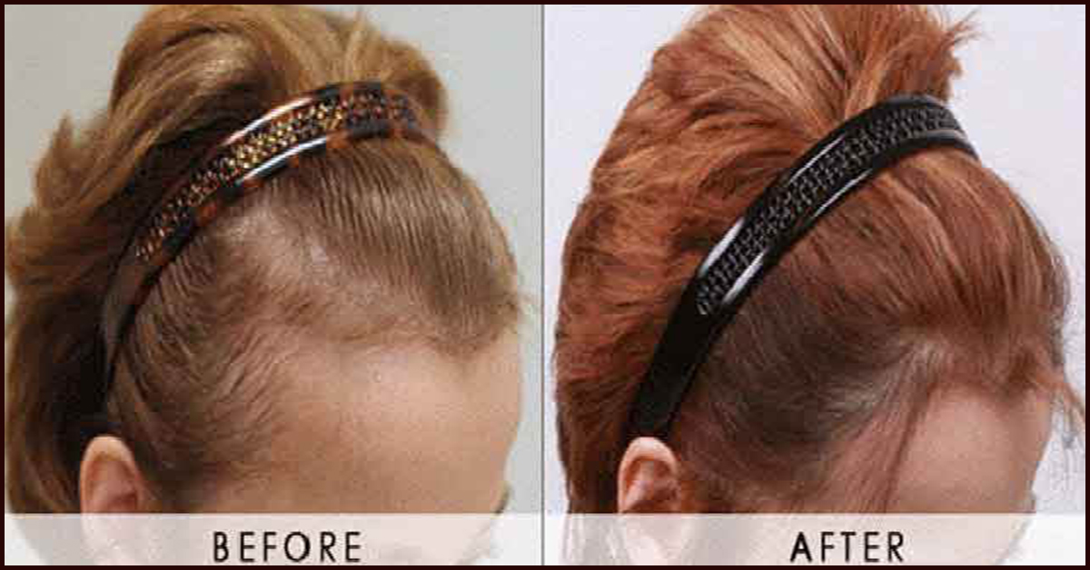 Jojoba Oil For Hair Growth Reviews Find Your Perfect