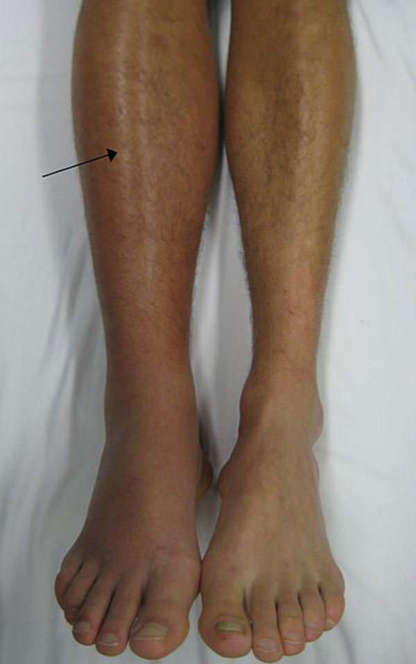 Get Rid of Spider Veins