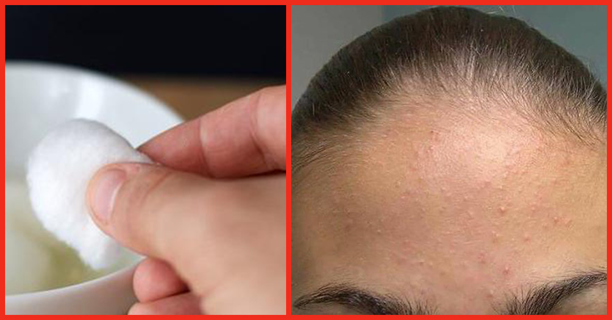 Natural Remedies Also in behalf of Pimples On Forehead