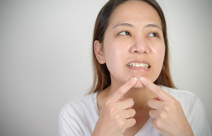 3-Tips-to-Remove-Chin-Blackheads