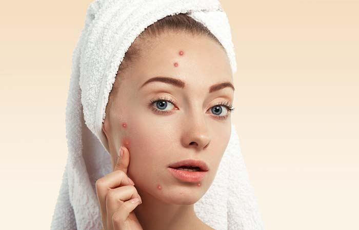 Avoid Touching The Pimple