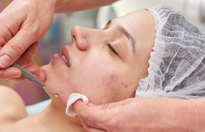 Creams, Medications, And Other Treatments To Stop Pimples And Acne Breakouts