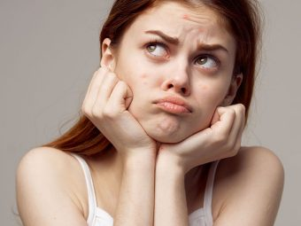How To Get Rid Of Forehead Acne + Causes And Prevention Tips