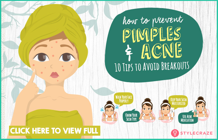 How To Prevent Pimples And Acne Naturally 13 Tips