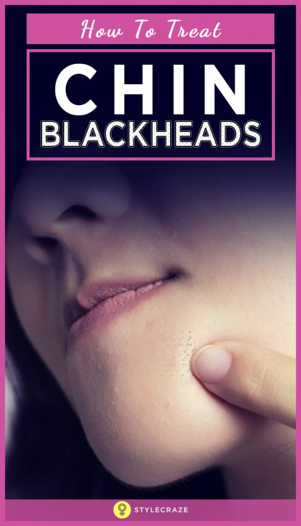 How To Treat Chin Blackheads?