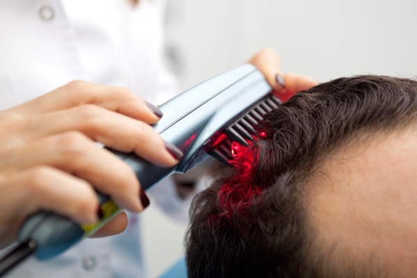 laser therapy for hair loss