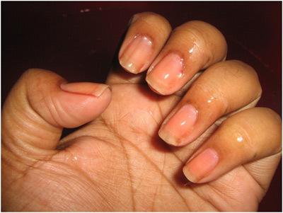 apply cuticle softener to do manicure at home