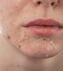 Skin Peeling: Causes And Treatments