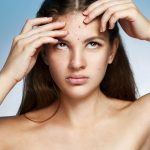 10 Causes Of And Simple Remedies For Pimples On Forehead