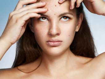 causes-and-simple-remedies-for-pimples-on-forehead-720x810