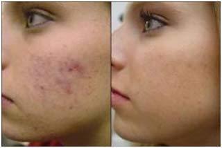 aloe vera juice for acne scars