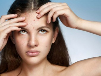 Pimples On Forehead