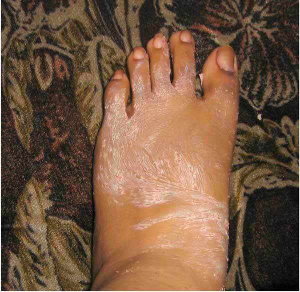 scrub the ankles of the feet