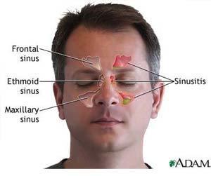 aloe vera juice for sinus infection