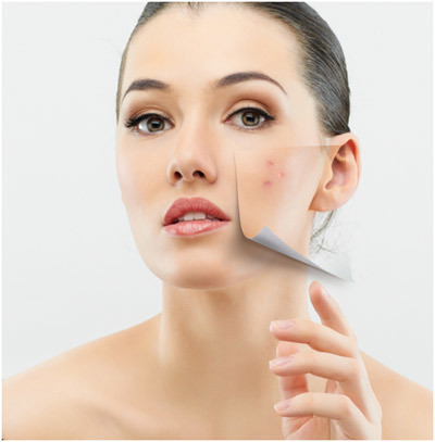 how to prevent acne and pimples