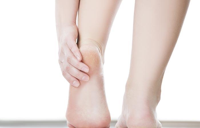 11. To Heal Cracked Heels