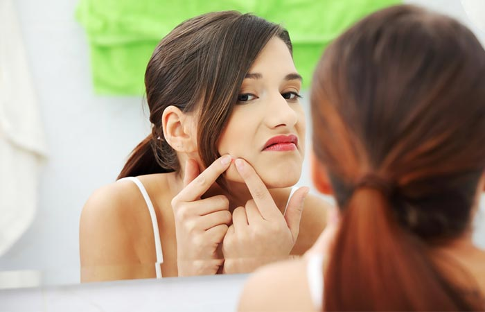 3. As A Treatment For Acne And Blemishes