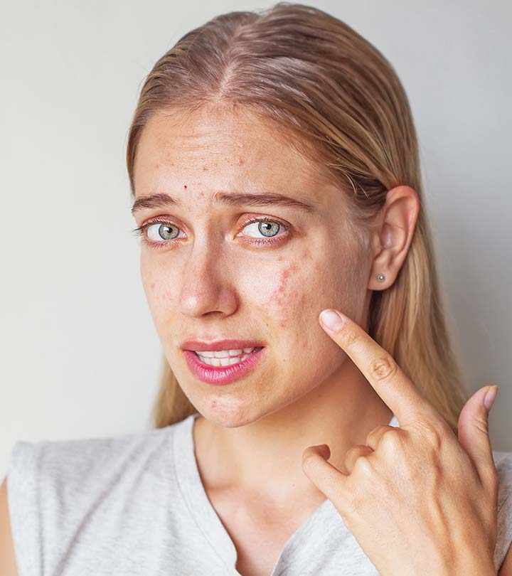 Cystic Acne – What Is It And How To Heal It?