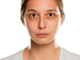 Sunken Eyes Causes, Remedies, And Prevention Tips