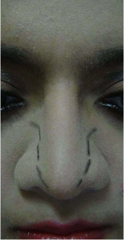 nose sharpness