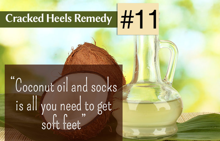 11.-Coconut-Oil-For-Cracked-Heels