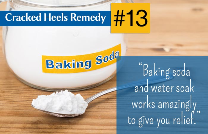 medical treatment for cracked heels
