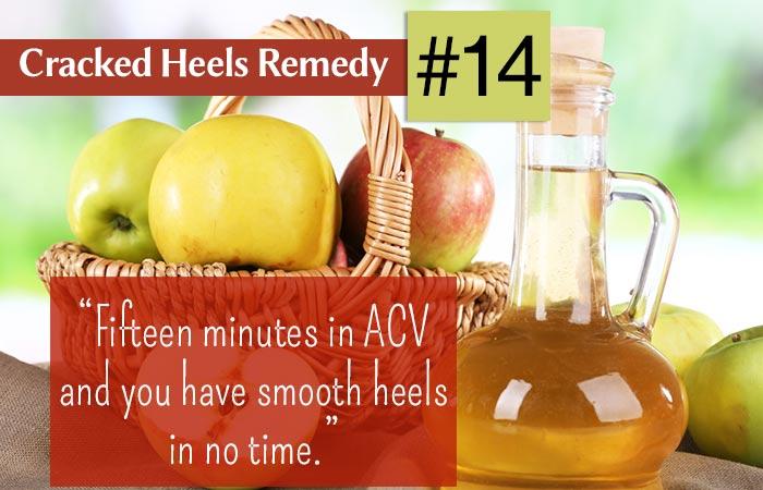 14.-Apple-Cider-Vinegar-For-Cracked-Heels