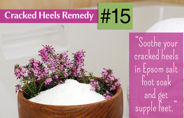 diy cracked heel soak