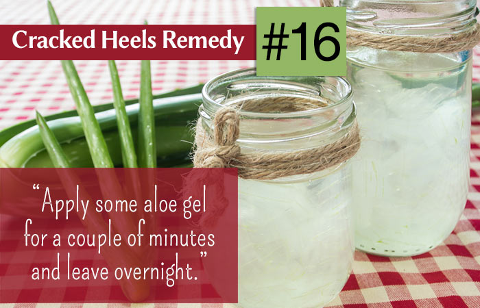 16.-Aloe-Vera-For-Cracked-Heels