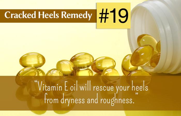 19.-Vitamin-E-Oil-For-Cracked-Heels
