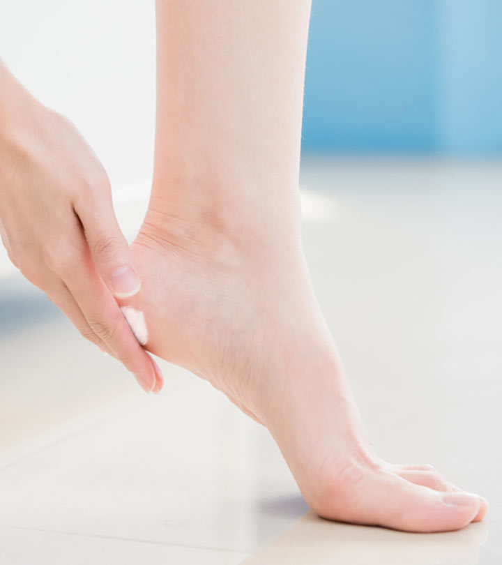 20 Home Remedies For Cracked Heels + Causes And Prevention Tips