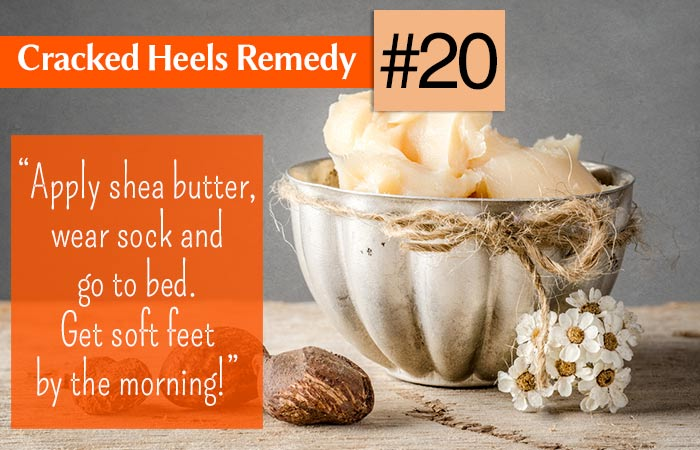 20.-Shea-Butter-For-Cracked-Heels