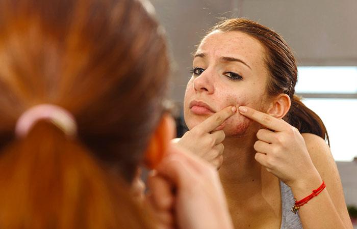 23. Prevents Acne Breakouts