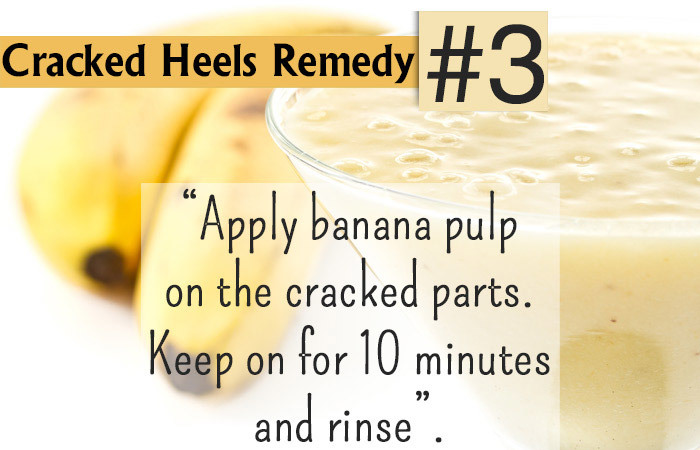 Astounding 20 Simple Home Remedies For Cracked Heels Download Free Architecture Designs Scobabritishbridgeorg