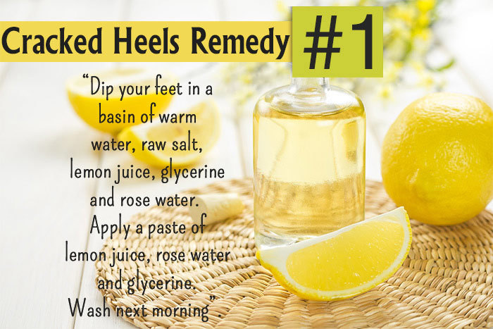 best treatment for cracked heels