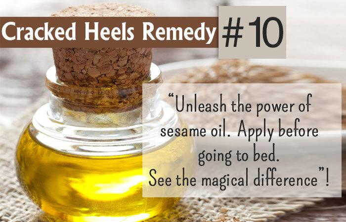 home remedies for dry cracked feet vinegar