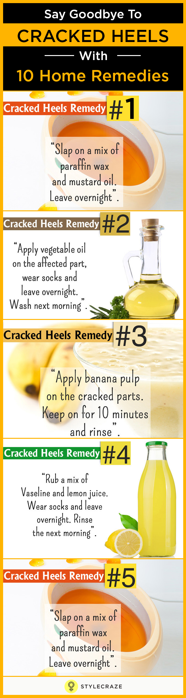 say goodbye to cracked heels with 10 Home remedies