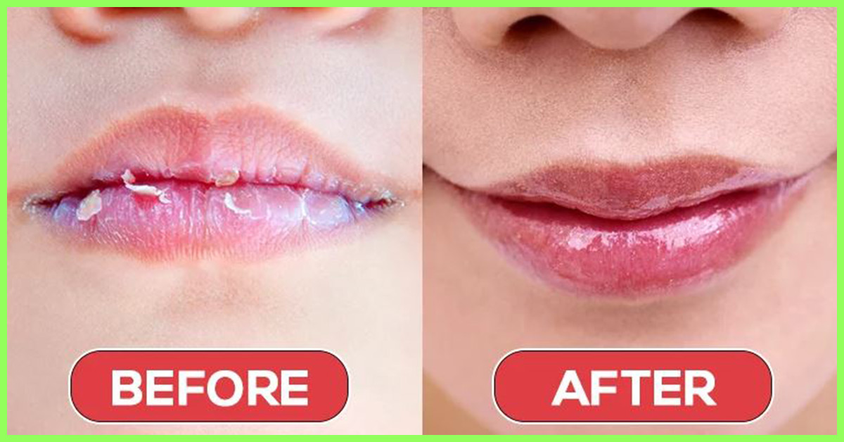 Natural Ways To Heal Lips