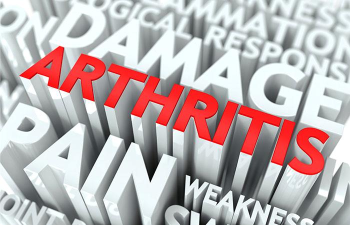 2. Aids Arthritis Treatment
