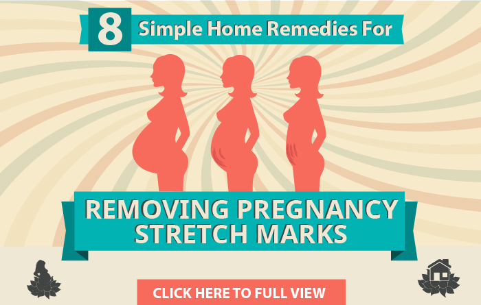 Home Remedies For Removing Pregnancy Stretch