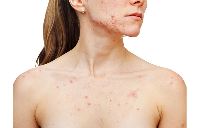 Treats Acne And Microbial Infections