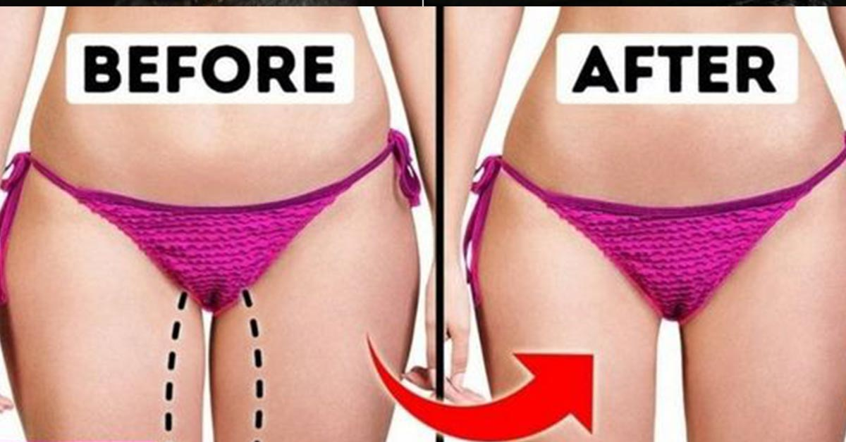 How To Lose Thigh Fat Get Slim Thighs Quickly And Easily