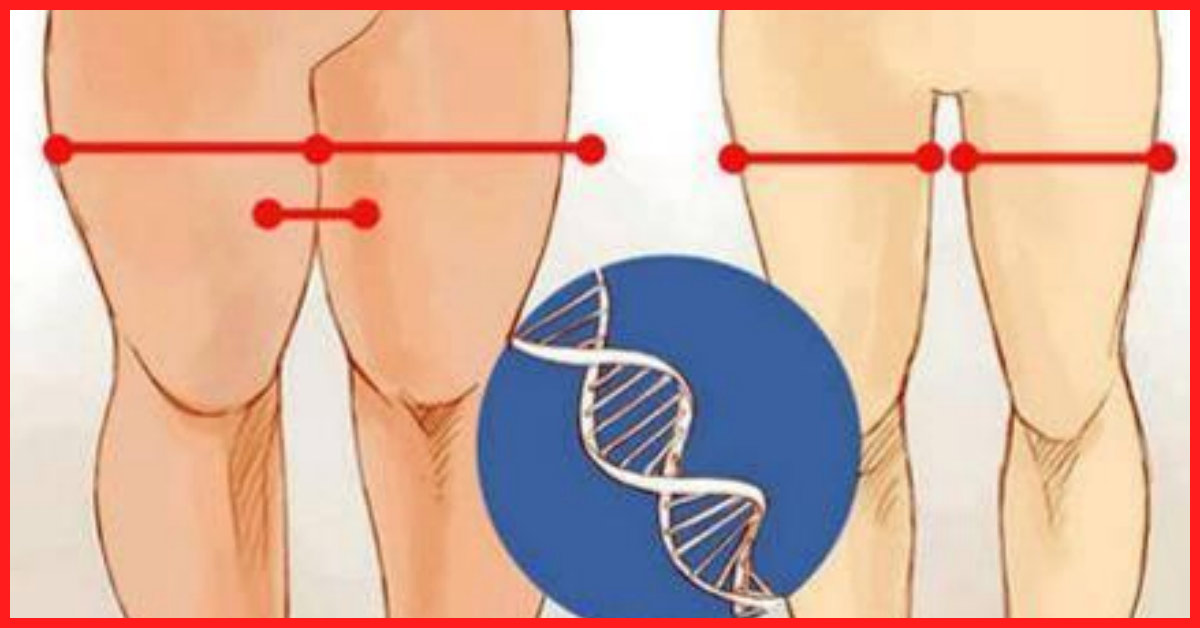 How To Lose Thigh Fat - Get Slim Thighs Quickly And Easily
