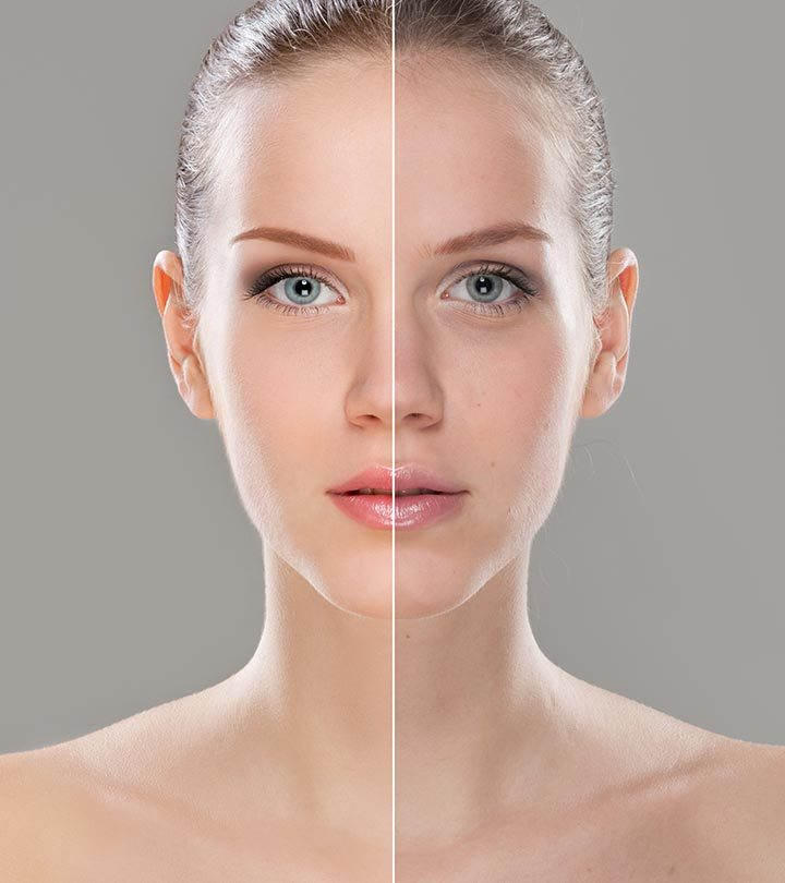 How To Treat Uneven Skin Tone