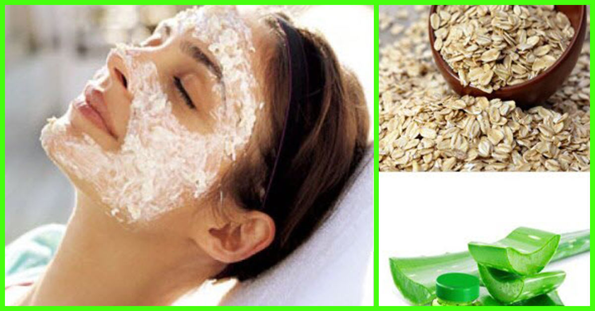 2 Simple Pimple Treatments For Oily Skin