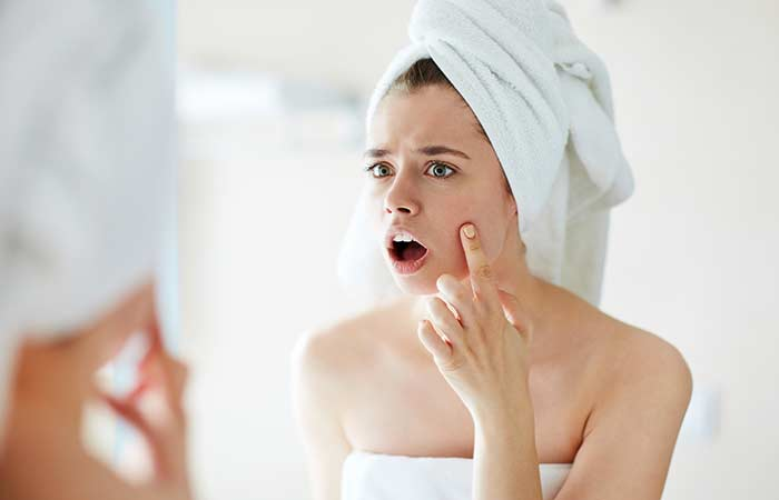 2. Treats Acne And Blemishes