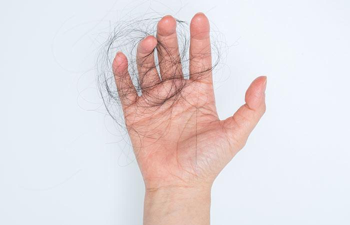 6.-Alopecia-Areata