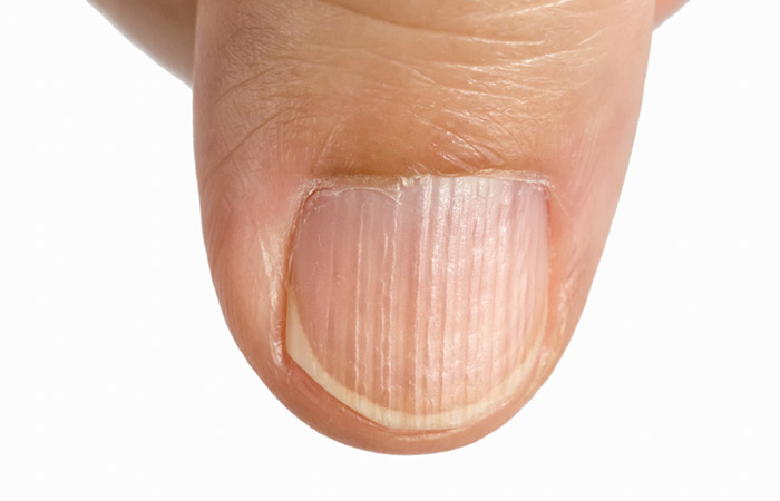 Effects Of Nutrient Deficiency On The Nails: What Do They Indicate ...